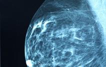 Необходимо ли полное удаление груди при раке молочной железы?