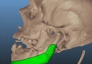 Пациенту установили челюсть, напечатанную на 3-D принтере