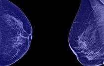 Рак молочной железы - новейшие лекарства