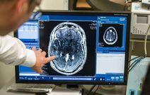 Впервые препараты химиотерапии преодолели защитный барьер мозга