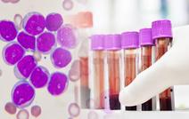 Новое лекарство от лейкемии показало эффективность у 80 % пациентов