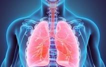 При раке легких иммунотерапия эффективнее химиотерапии