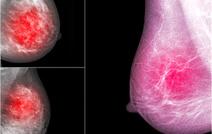 Что нового в лечении рака молочной железы?