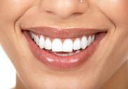 Стоматология в Израиле: все, что нужно знать о белоснежной улыбке