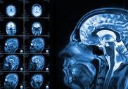 Спасительная вакцина: терапия вирусами помогает при раке мозга
