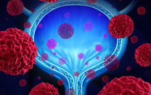 Ученые не нашли связи между раком простаты и мочевого пузыря