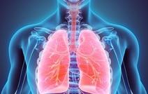 Новый метод лечения рака легкого увеличивает выживаемость на 50 %