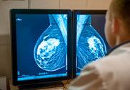 Рак молочной железы: насколько высока вероятность рецидива?