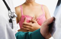 Большинству пациенток с раком молочной железы не нужна химиотерапия
