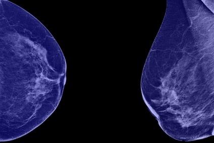 Рак молочной железы маммография