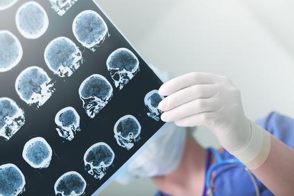 врач смотрит снимки головного мозга