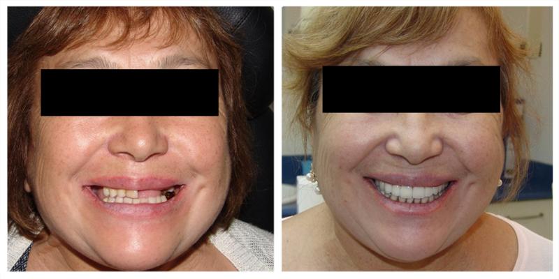 фото пациентов после зубного подъёма