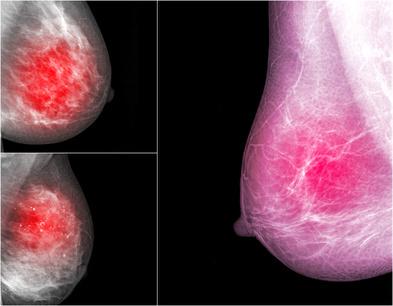 снимок маммография молочной железы