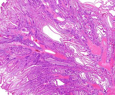 Злокачественные клетки меланомы под микроскопом