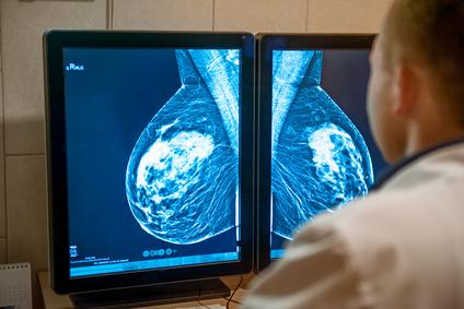 Врач смотрит маммографию