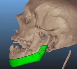 В Израиле пациенту установили челюсть, напечатанную на 3-D принтере